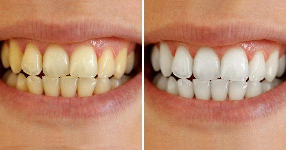 k1 dental belejnje zuba stomatolog beograd
