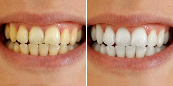 izbeljivanje beljenje zuba