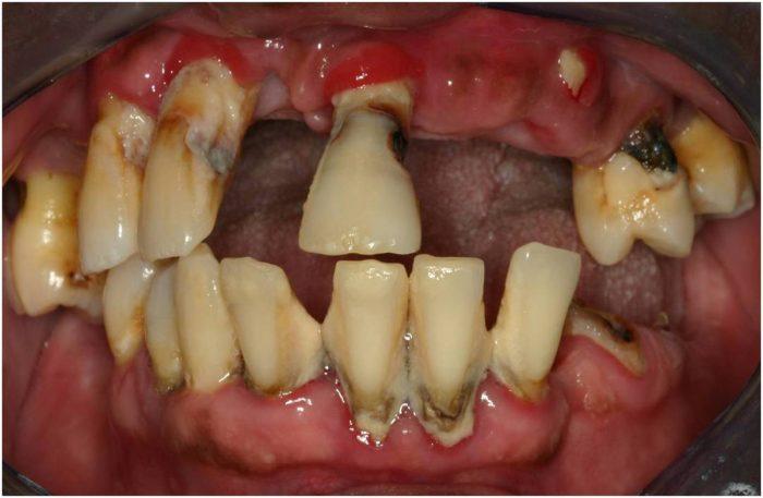 Loša higijena zuba